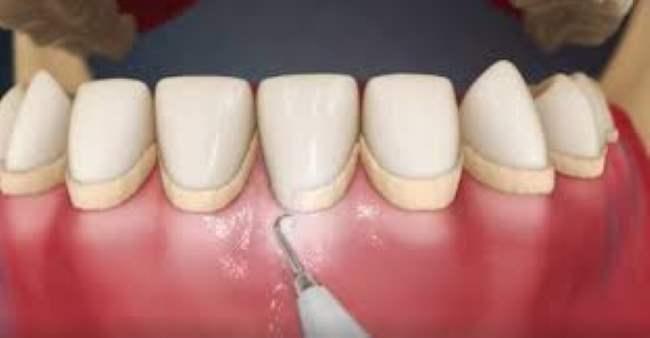 ideal-sorriso-remocao-de-tartaro (3)