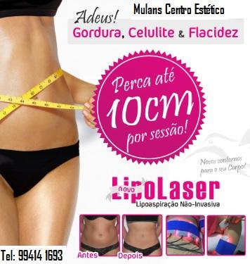lipolaser 4