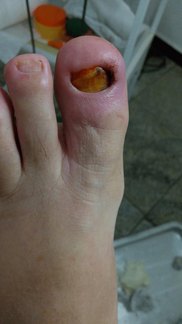 caso de infecção